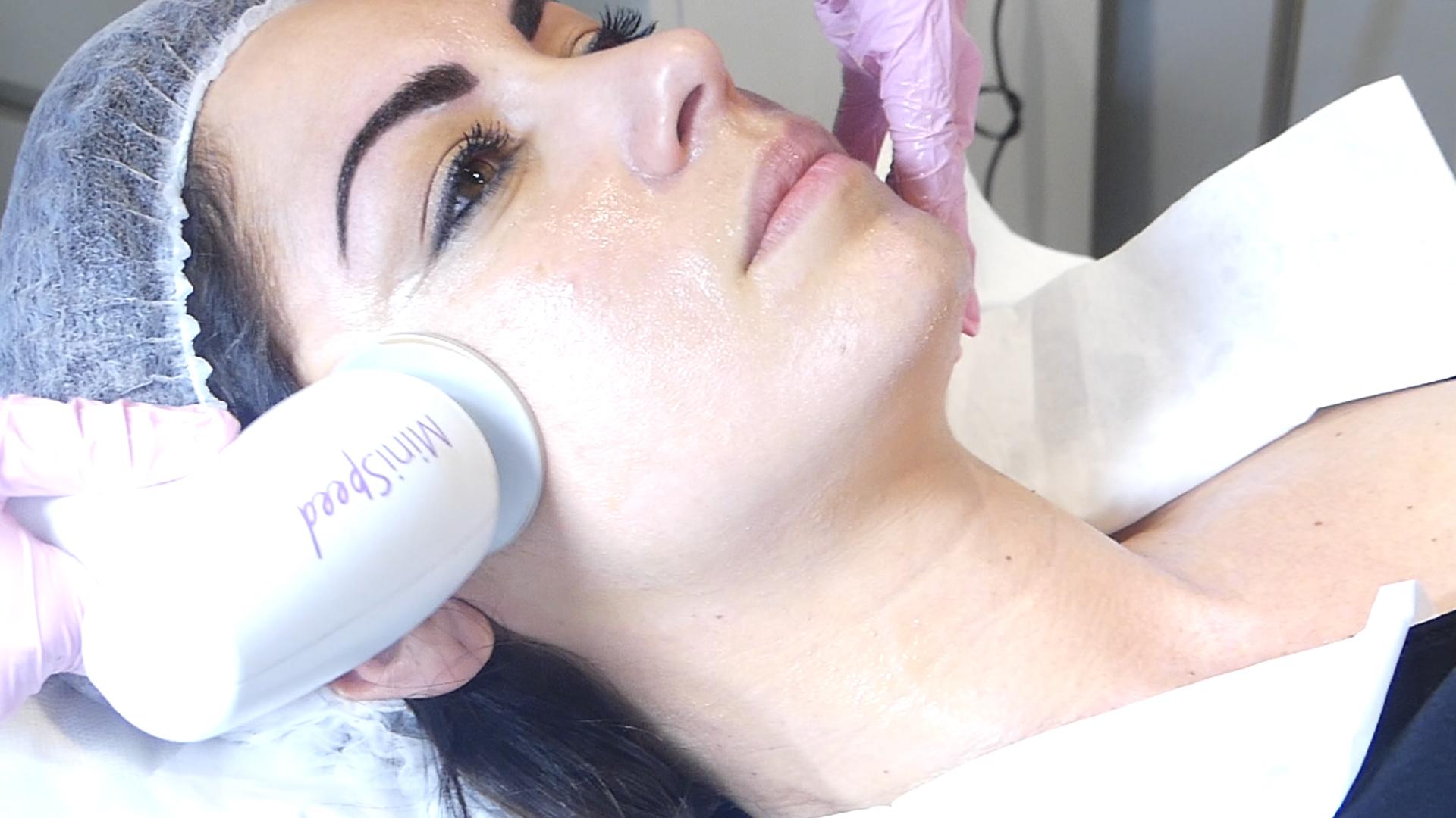 Accent Prime est la plateforme la plus avancée d'Alma laser concernant l'aspect de la peau, le raffermissant et le remodelage esthétique. C'est une combinaison brevetée d'une technologie d'ondes ultra sonore avec de la radiofréquence qui distribue une énergie concentrée.