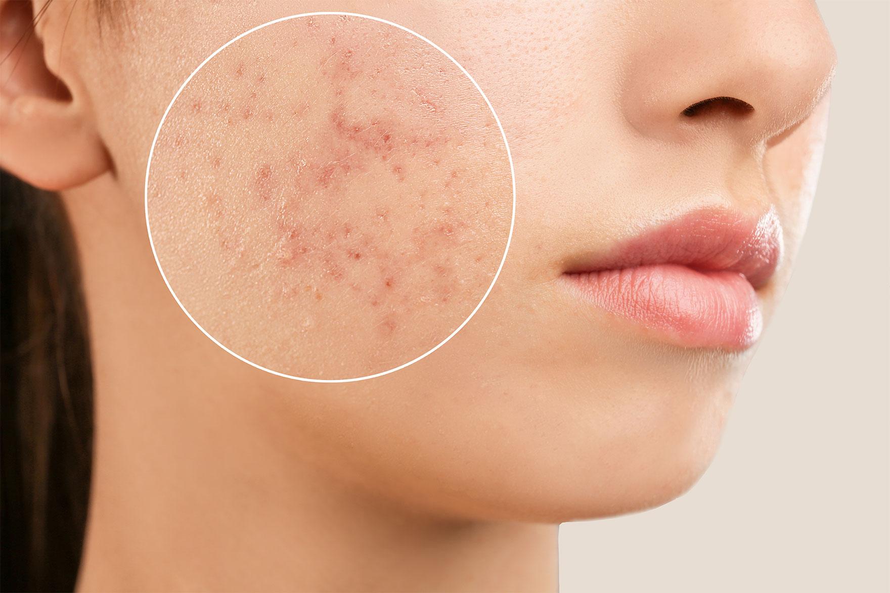Découvrez les causes de l'acné adulte. Toutes les astuces et solutions pour en finir avec l'acné tardive et retrouver une peau nette.