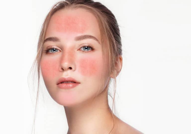 La rosacée est une affection cutanée chronique qui affecte généralement le visage; souvent le front, le nez, les joues et le menton sont impliqués. Il est important d'utiliser des produits apaisants, anti-inflammatoires et pleins d'antioxydants afin de lutter contre les dommages causés par les radicaux libres,